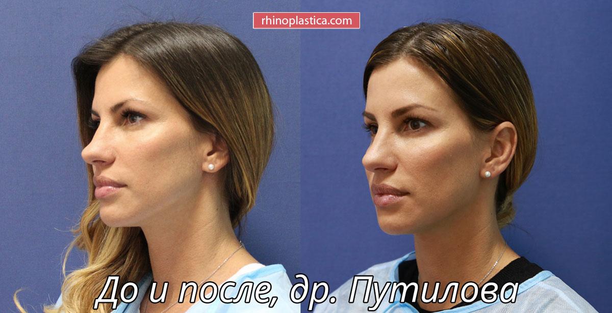 Безоперационная ринопластика от Путиловой Н.Ю. — фото «До и После»