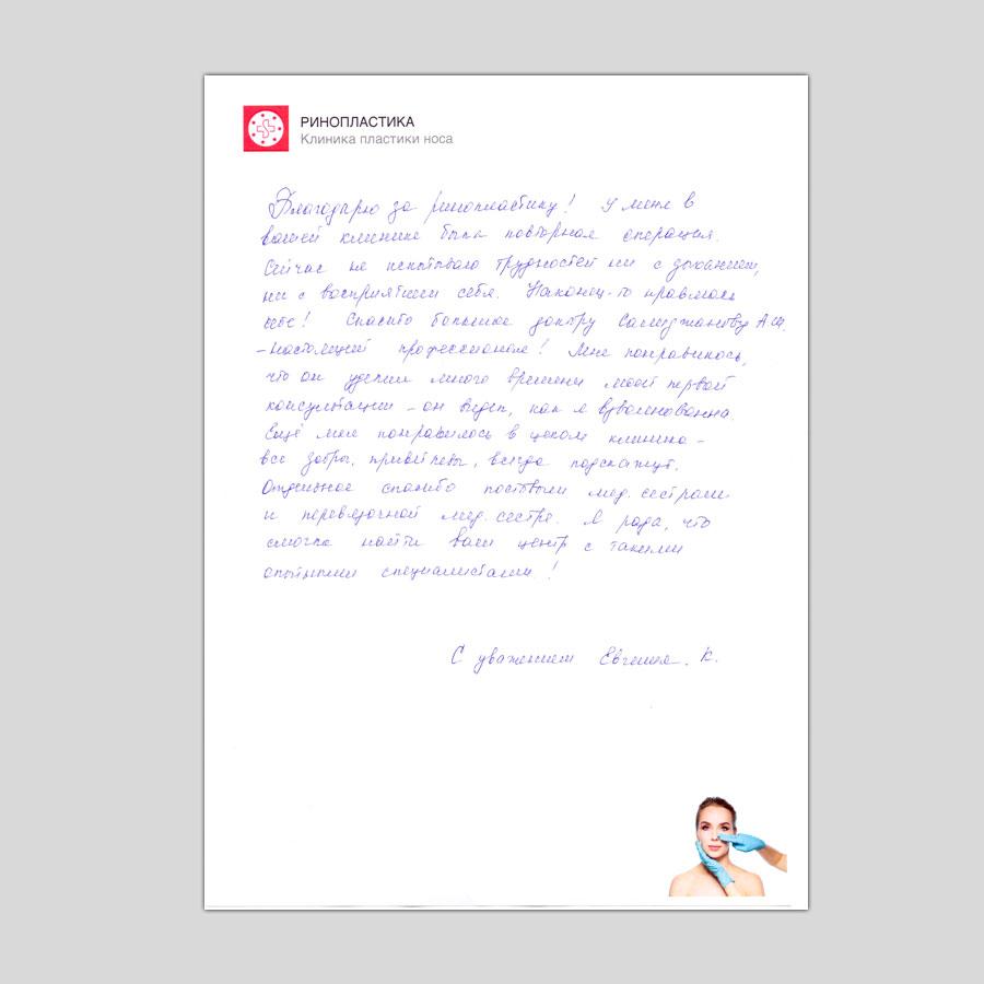 отзыв после ринопластики носа от Евгении К.