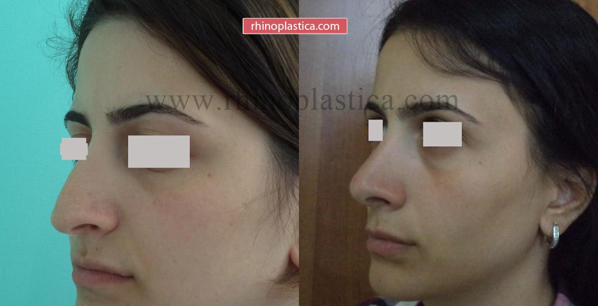 Ринопластика от Кобулашвили Т. Г. — фото «До и После»