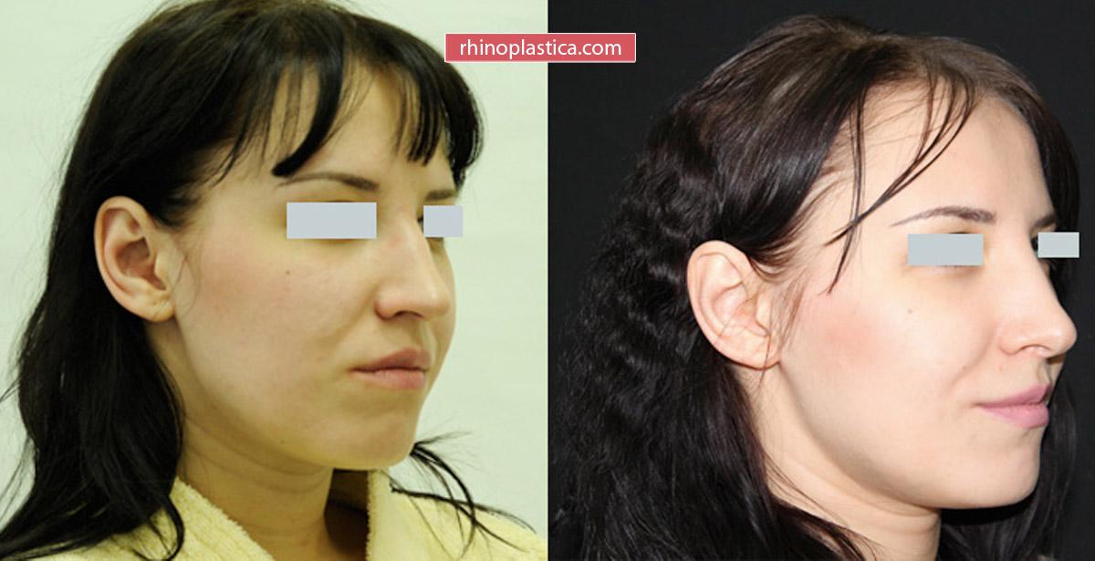 Ринопластика от Салиджанова А. Ш. — фото «До и После»