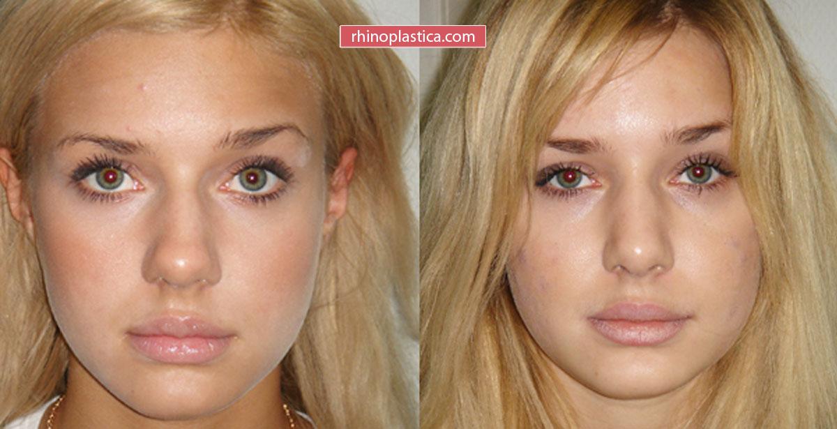 Ринопластика — фото «До и После»