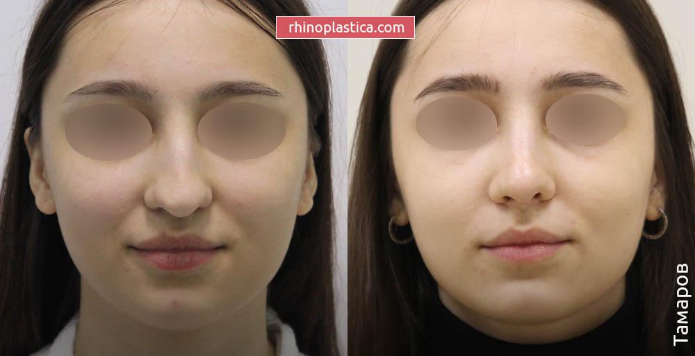 Ринопластика — фото «До и После». Хирург Тамаров А. Н.