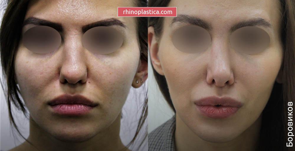 Ринопластика — фото «До и После». Хирург Боровиков А. М.
